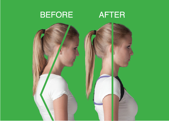 Posture Medic Body Improvement