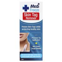 Medi Freeze Skin Tag Remover